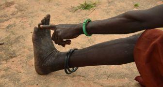Sudan Selatan Tumpas Penyakit Cacing Guinea